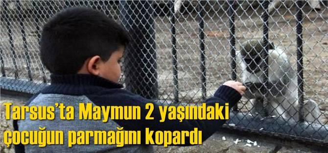 Tarsus'ta Maymun 2 yaşındaki çocuğun parmağını kopardı