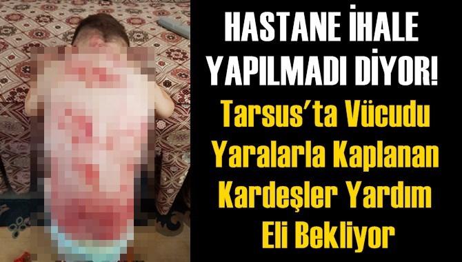 Tarsus'ta Vücudu Yaralarla Kaplanan Kardeşler Yardım Eli Bekliyor