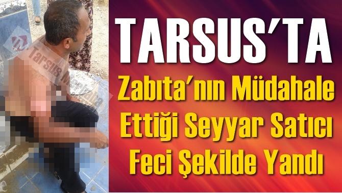 Tarsus'ta Zabıta'nın Müdahale Ettiği Seyyar Satıcı Feci Şekilde Yandı